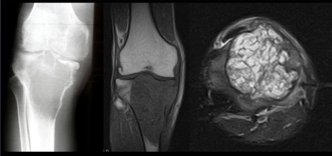 Más frecuentes en mujeres de 20-50 años. RX: en extremidad proximal de la tibia (METAFISOEPIFIARIA) lesión lítica pseudotrabeculada de bordes definidos no esclerosados, la misma imagen en RM T1 lesión hipo intensa homogénea y axial DP FAT SAT  hiperintens