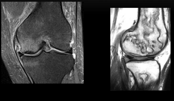 Reducción o falta de aporte sanguíneo. Osteonecrosis es subcondral. Infarto óseo afectación epifisaria-metafisodiafisaria un patro serpiginoso de bordes hipointensos en T1. Causa multifactorial: idiopatica, traumatica, ingesta de corticoides.