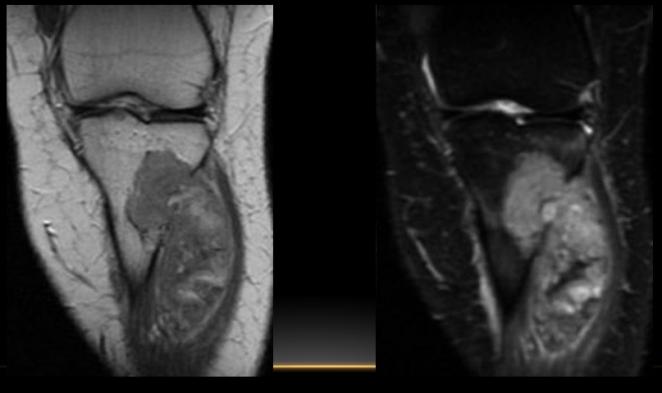 Tumor de formación de matriz condroide, más frecuente en hombres, después de los 40 años. Lesión intramedular  de aspecto multinodulada que se extiende a partes blanda. T1: hipo DP FAT SAT hiper.